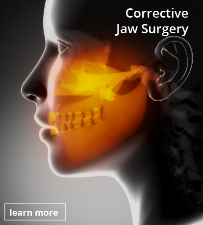 san juan corrective jaw surgery button v2