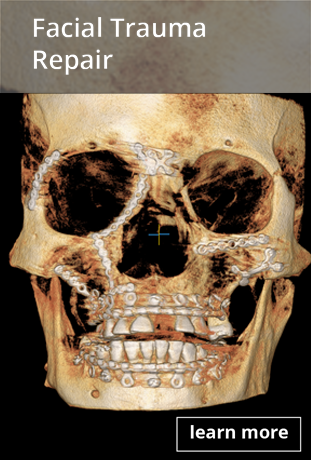 san juan facial trauma repair button ct