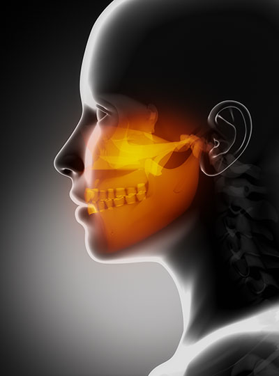 Diagram of facial reconstruction by oral surgeon in San Juan, CA.
