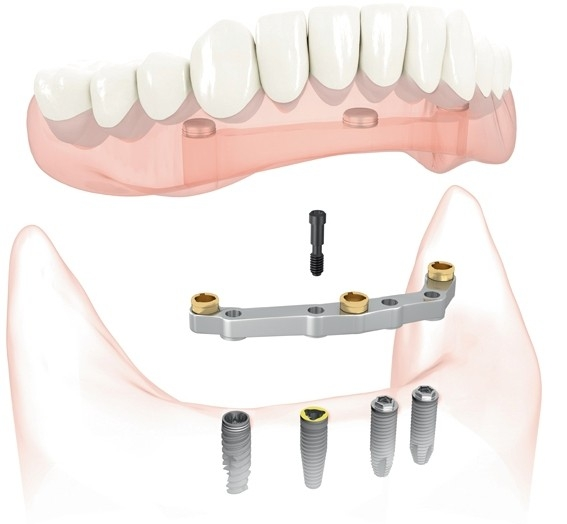 Diagram of bar attachment denture from oral surgeon in San Juan, CA.